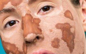 Cara Memilih Skincare untuk Kulit Kering Anda