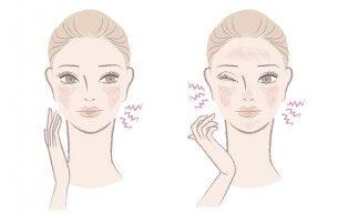 Wajib Tahu, Begini Cara Memilih Skincare untuk Kulit Sensitif