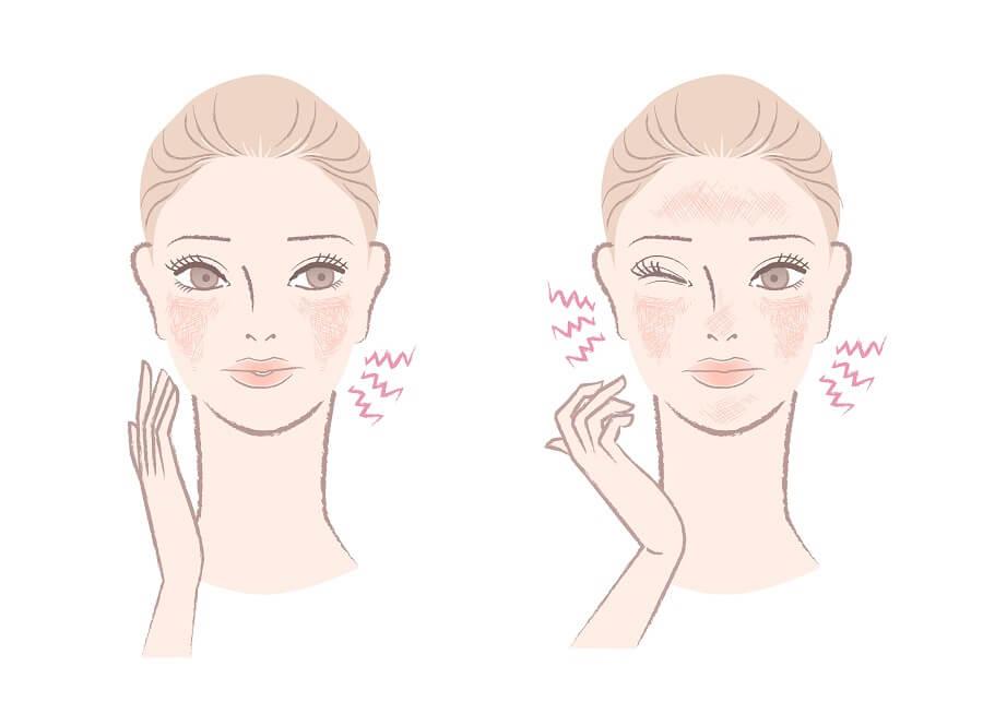 Cara Memilih Skincare untuk Kulit Sensitif