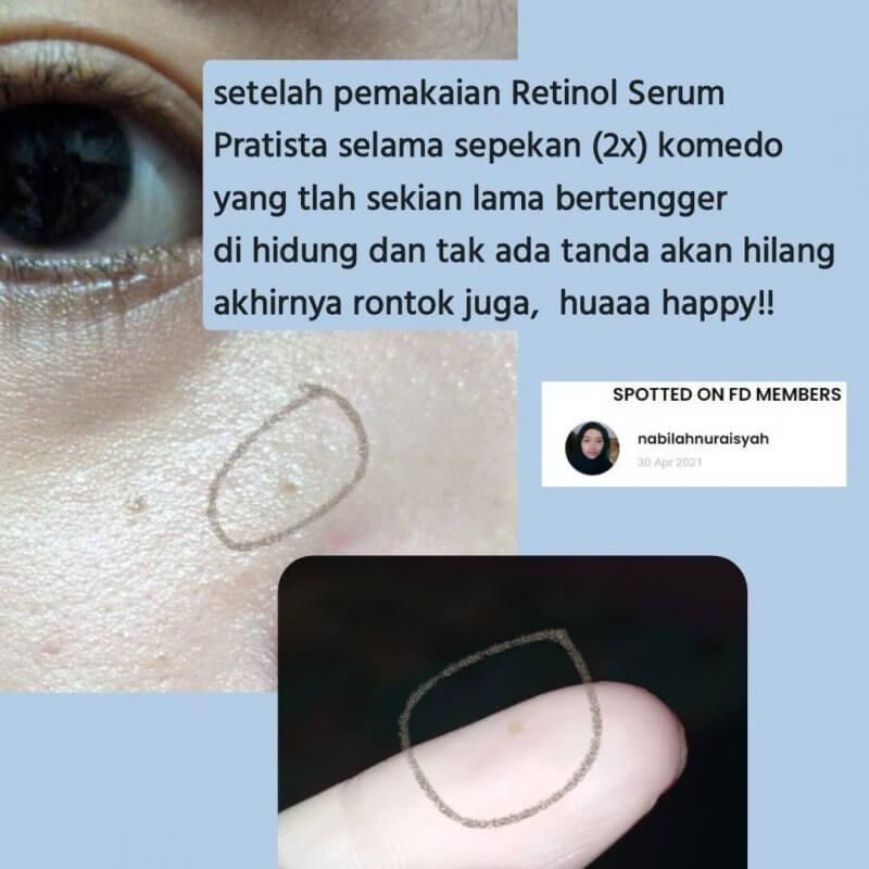 testimoni retinol pratista 3